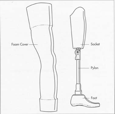 A typical artificial limb, in this case an above-the-knee prosthesis. The foam cover is covered with artificial skin that is pointed to match the patient's natural skin color.