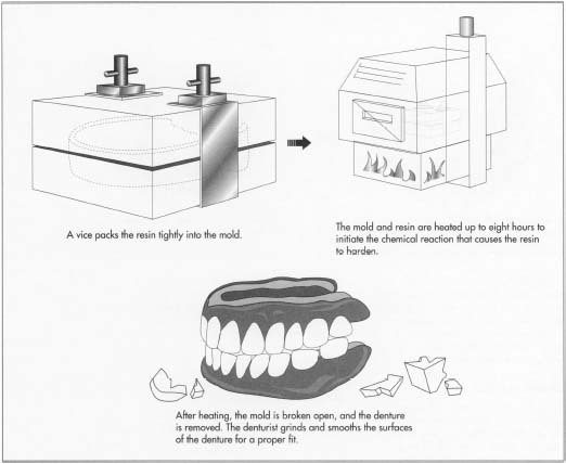 How denture is made - material, manufacture, making, history