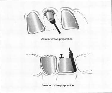 Two types of crown preparation: anterior and posterior.